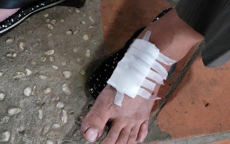 Hơn 20 người đánh 3 người trong quán ở Thủ Đức - ảnh 3