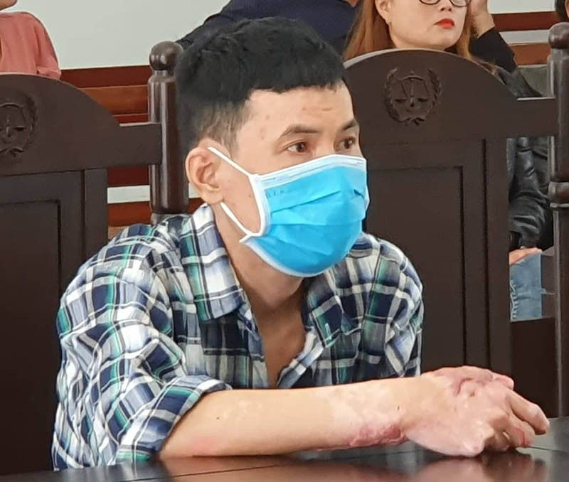 Kẻ tưới xăng đốt vợ bị phạt 16 năm tù - ảnh 1