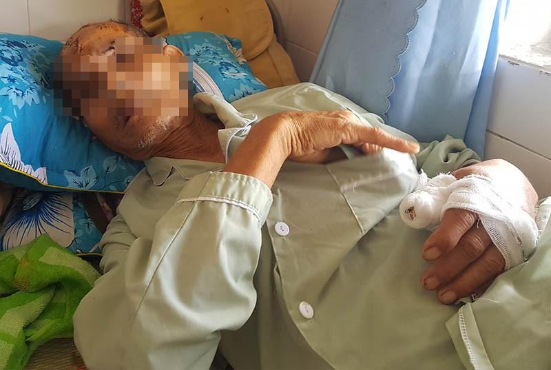 Người cha bị con cháu đánh nguy kịch vì định bán đất chữa bệnh - ảnh 1