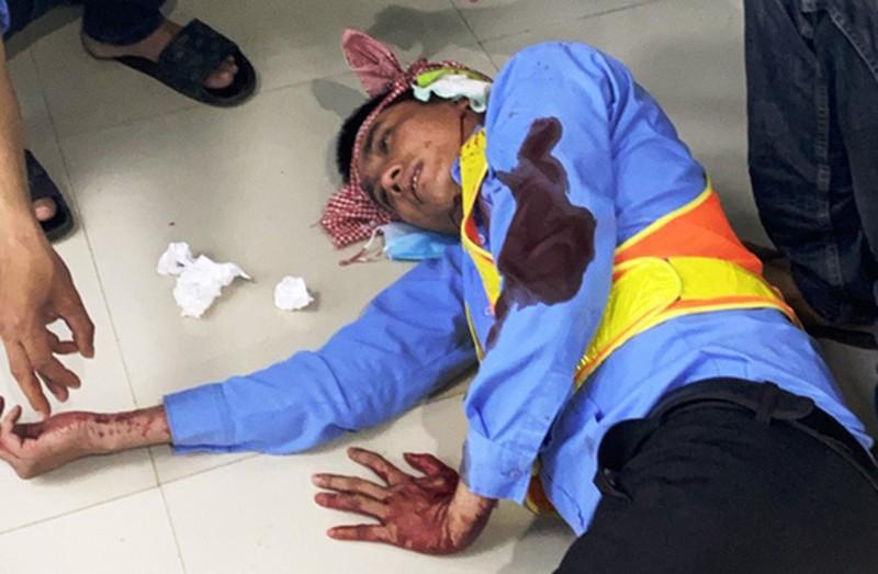 2 nhân viên trạm BOT bị đánh trọng thương khi đang làm việc - ảnh 1
