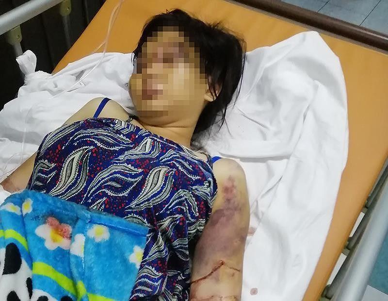 Vụ tra tấn cô gái ở Bình Chánh: Khởi tố nghi can cầm đầu - ảnh 1